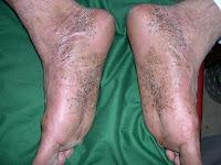 Фото псориаза на ступнях