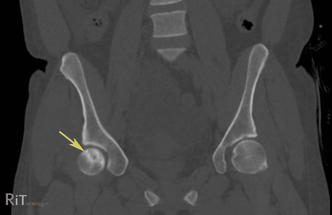 hip dislocation diagnosis  hip  get free image about