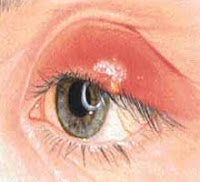 Orzuelos - Sintomas y tratamiento