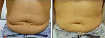 carboxiterapia barriga