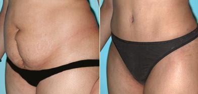 Fotos Antes E Depois Confira Nessas De Abdominoplastia