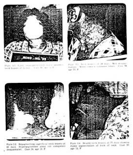300px Project 4.1 figures Τα 10 πιο σατανικά πειράματα που έγιναν πάνω σε ανθρώπους