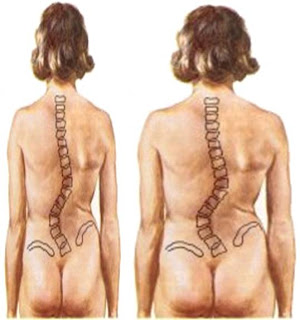 El masaje infantil la profiláctica de la escoliosis
