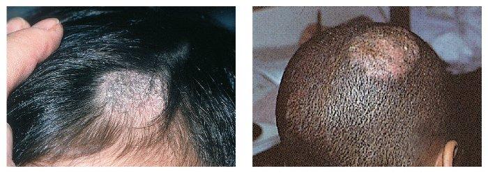 La máscara para los cabellos de los aceites de la yema y las vitaminas