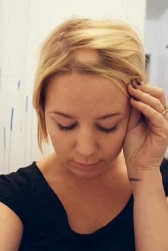 Caida de cabello en mujeres menopausia
