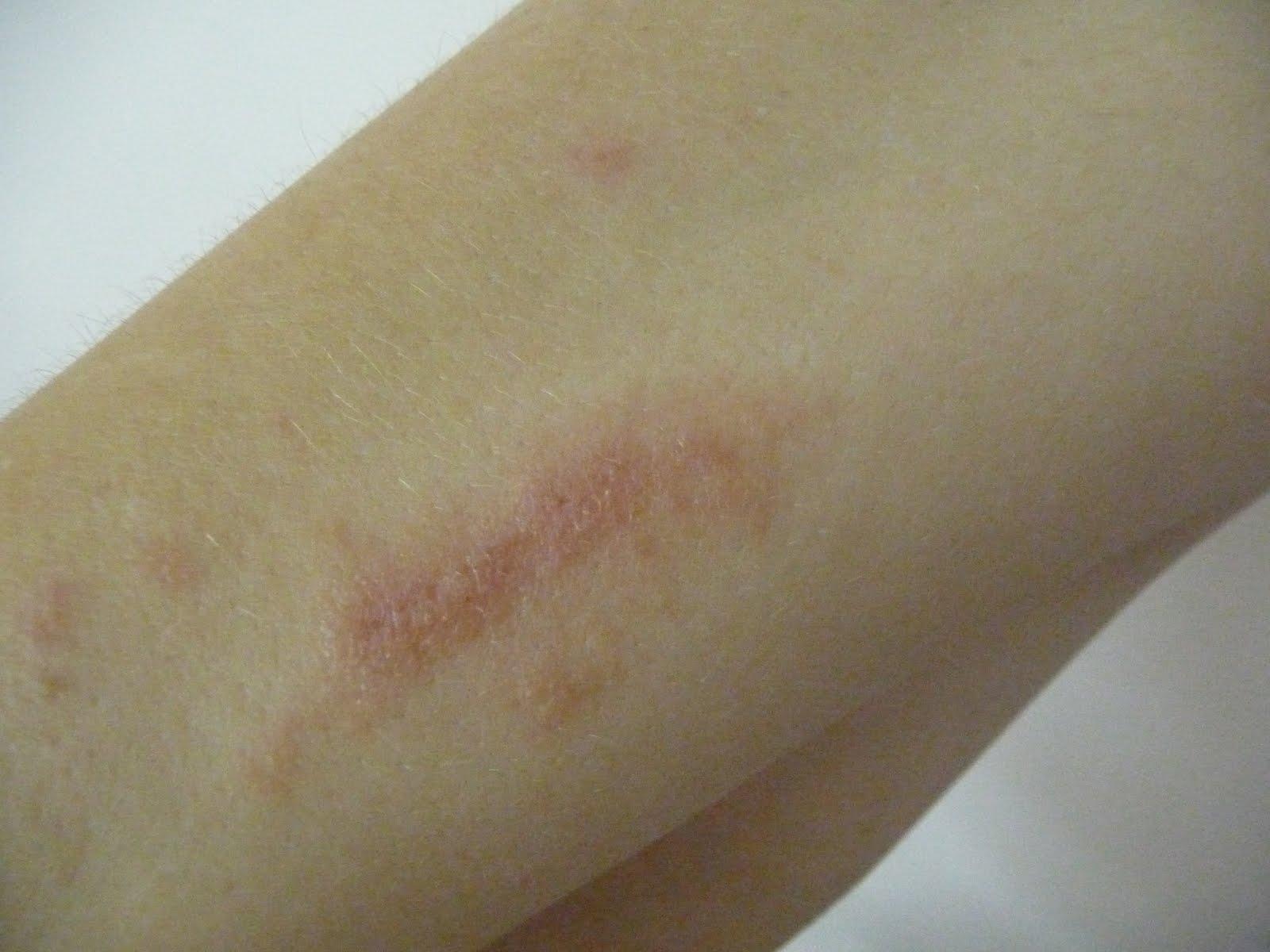 Poison ivy rash - Mayo Clinic
