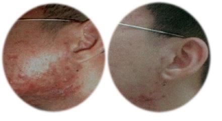 Piel con Acné     Antes y Después del tratamiento