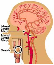 STROKE IDENTIFICATION:
