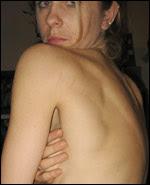 anorexia , bulimia, dieta