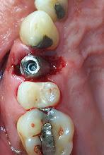 Implante inmediato