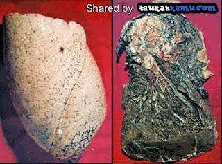 Perbedaan Paru-paru Perokok dan Tidak Perokok