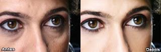 Tratamento,envelhecimento,olheiras,