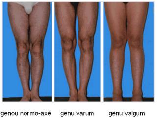 عکس واقعی اندام تناسلی مردان
