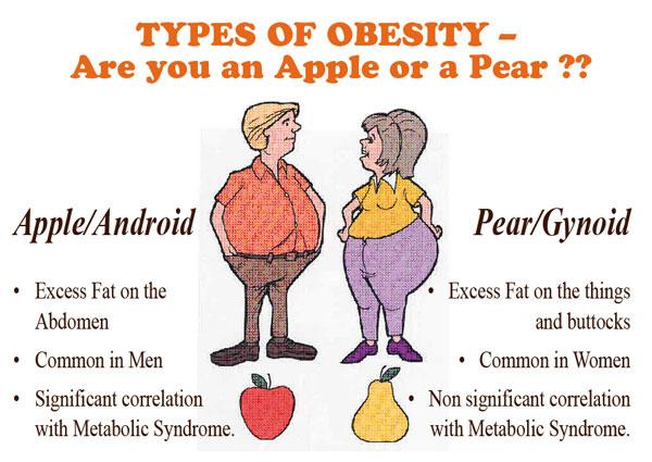 obesitas type 1