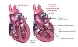 Abi's Heart