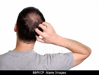 stock photo of man scratching the back of his head