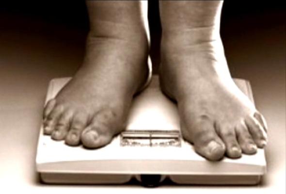 obesity feet