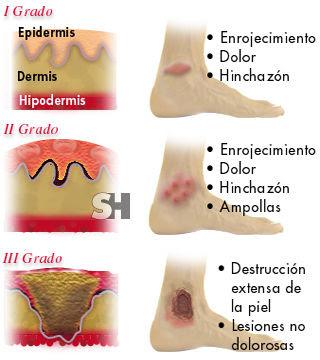 El tratamiento de la psoriasis por el ácido salicílico