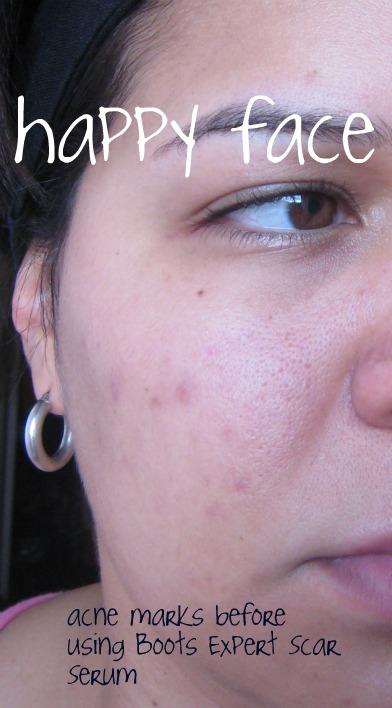 Estee Lauder Advanced Night Repair Before After Skin Care