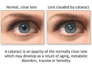 ... – Cataracts Definition, Symptoms, Causes, Treatment, Risk Factors
