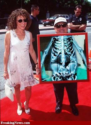 Celebrity xray pics