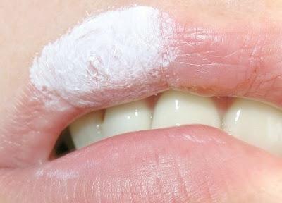 herpes bouche bouton herpès sur la bouche