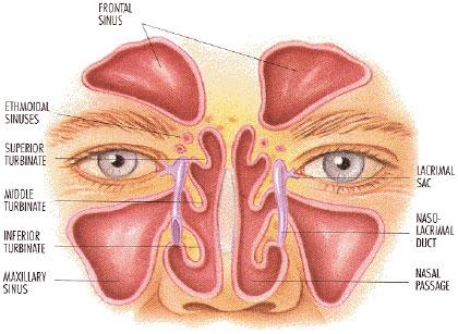 BONE DEPRESSIONS - LESSON 207 |FREE ONLINE MEDICAL ... Maxillary Sinus Inflammation