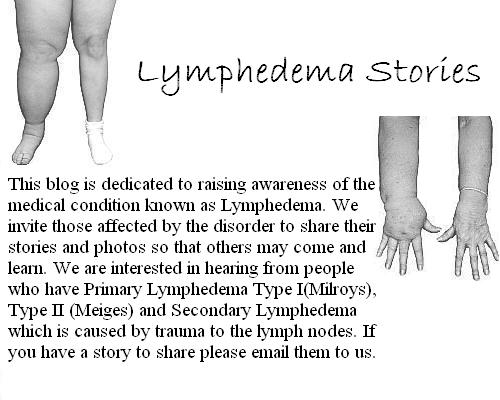Lymphedema Stories