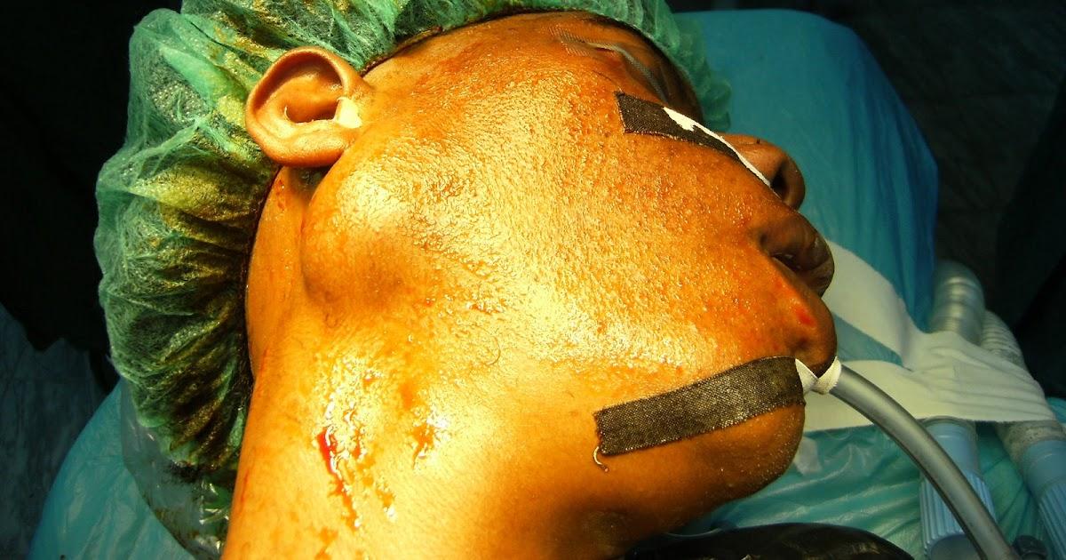 ORL-HN surgery: Superf...