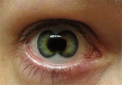 Lentille Double Iris