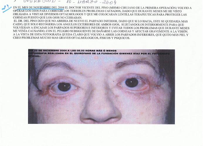 Las causas de los hinchazones del párpados y los ojos