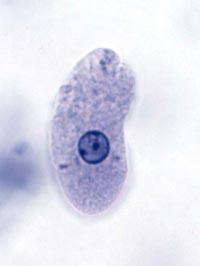 Parasite Entamoeba hystolytica