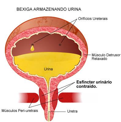 fisioterapia incontinencia urinaria:
