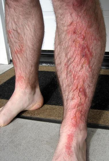 pictures of poison sumac rash. poison sumac rash