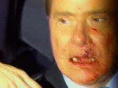 Silvio Berlusconi attacked