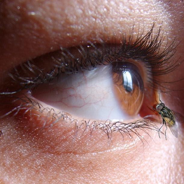 ver mosca ojo: