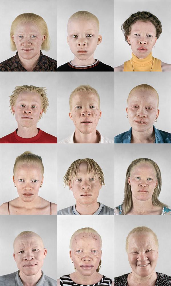 black+albino.jpg