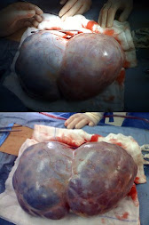 Ovarian Cancer Tumor