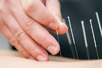 Acupuncture could be an important alternative, non-drug therapy for women with polycystic ovary syndrome, researchers believe. (Credit - iStockphoto)