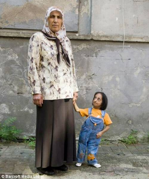 shortest woman in world. The world#39;s shortest woman,