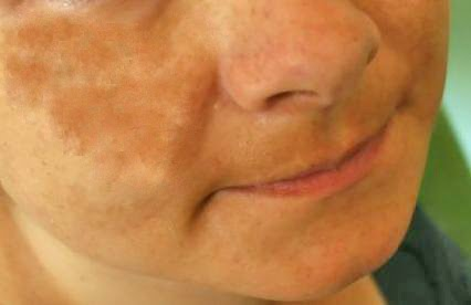 Skin problems on face during pregnancy