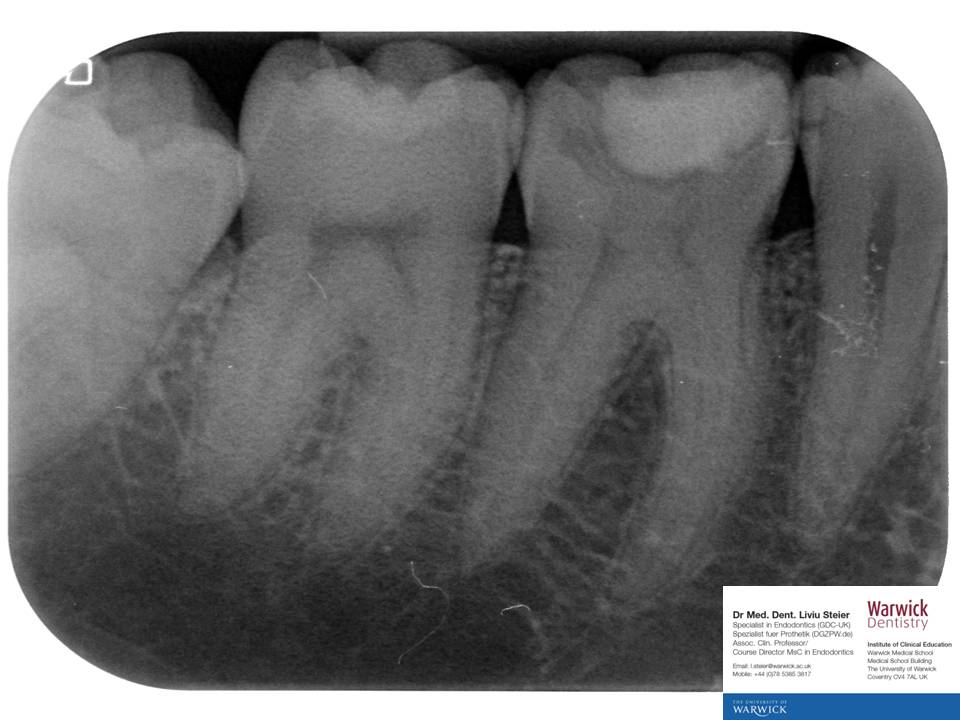 an analysis of the topic of the root canal Initially developed to analyze industrial accidents, root cause analysis is now widely deployed as an error analysis tool in health care a central tenet.