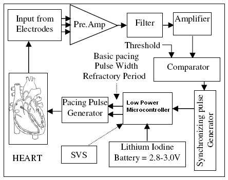 micer.bmp pacemaker system diagram wiring diagram all data