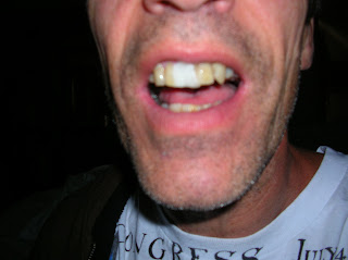 my fake front teeth I have fake top front teeth and my last dentist filed too much off the top of one along the gum line, making it appear - answered by a verified dentist.