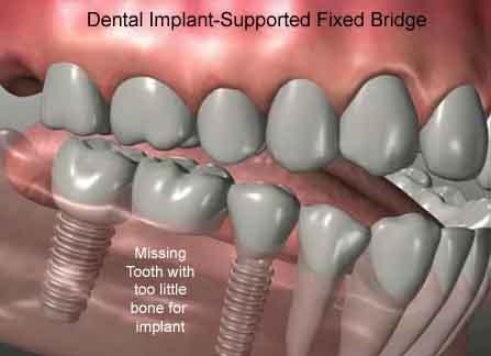 Имплантация зубов в твери цены
