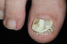 El hongo en los pies como curar es público