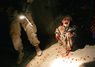 Civilians are the real casualties of wars.