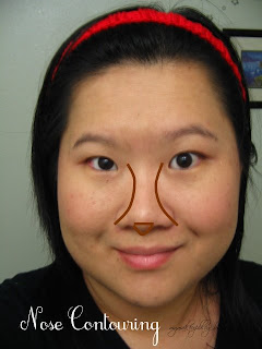 Nose Job Without Surgery In West Palm Beach