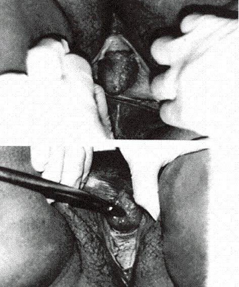 Facthus E S Mulher Descobriu Que Tinha Duas Vaginas Somente Aos