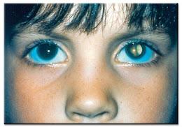 Cataract Congenital (Diwarisi)